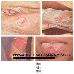 premature ejaculation (rozz williams) - part 2